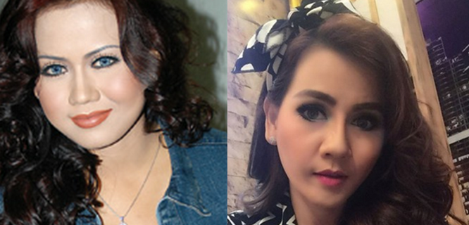Nita Thalia sebelum dan sesudah operasi plastik (foto: smeaker)