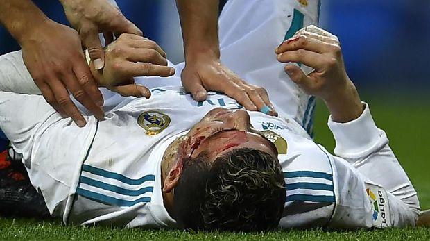 Cristiano Ronaldo mengalami luka di kepala (foto: AFP)