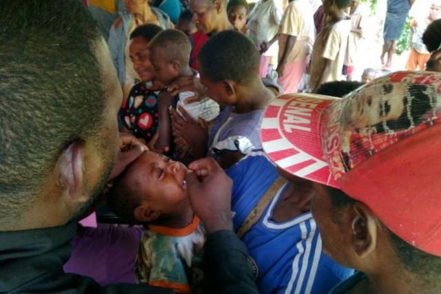Wabah Campak dan Gizi Buruk Serang Warga Asmat Papua (foto: Kompas)
